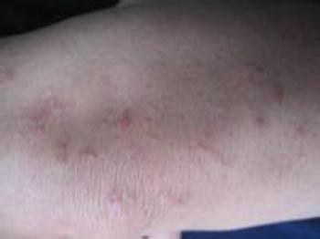 牛皮癣是传染病吗