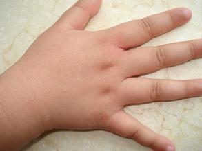 儿童患上牛皮癣该怎么办