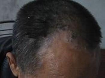哪种方法治疗头部银屑病好